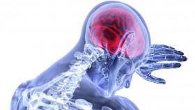 Fast untuk kenali stroke
